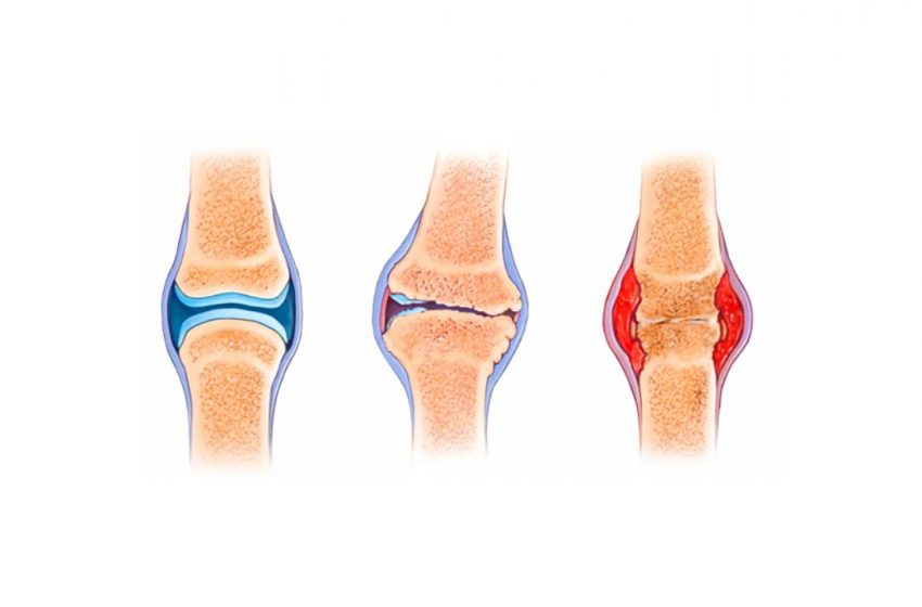 CBD for Loss of Joint Function