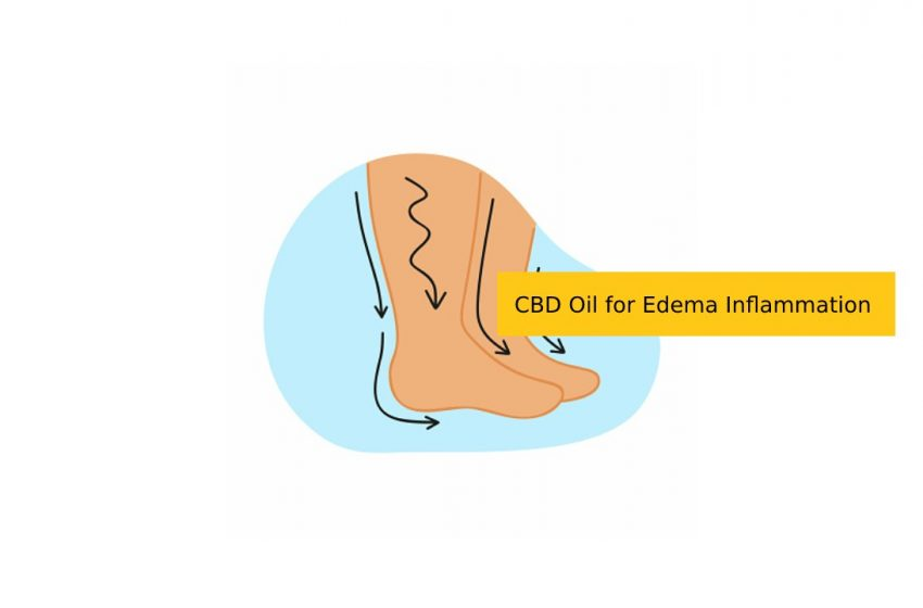 How CBD Oil Can Help With Edema Inflammation