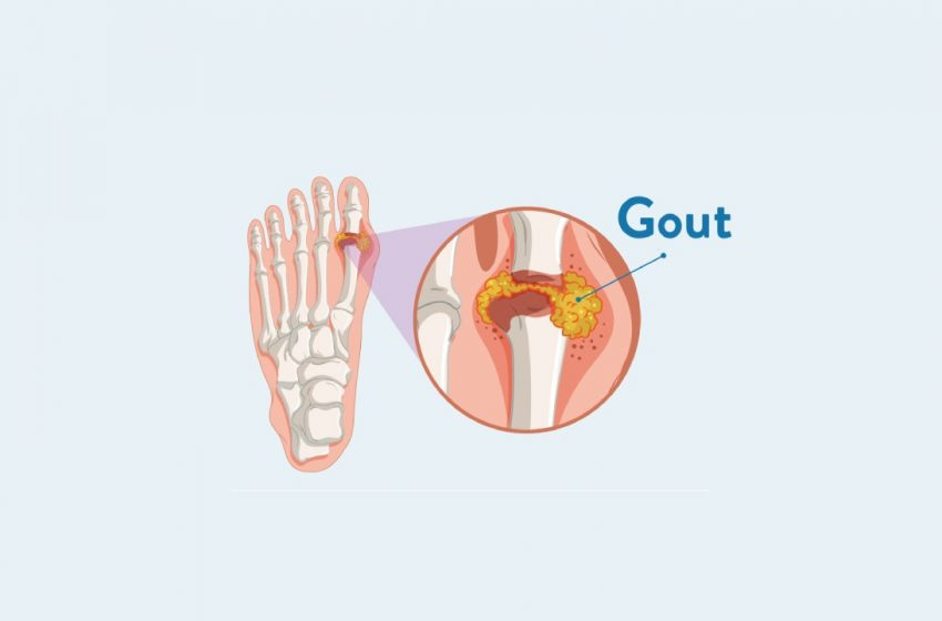 How CBD Can Help Work Out Your Gout