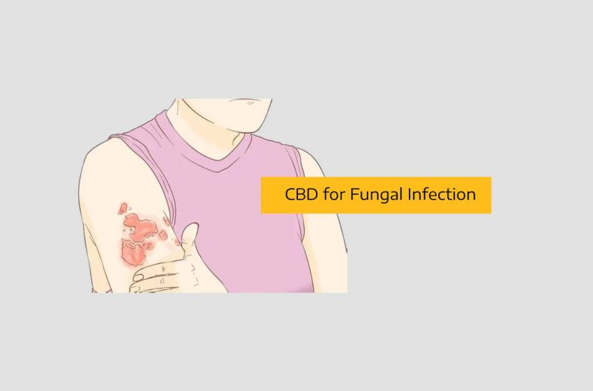 How CBD Can Alleviate Symptoms of Fungal Infection