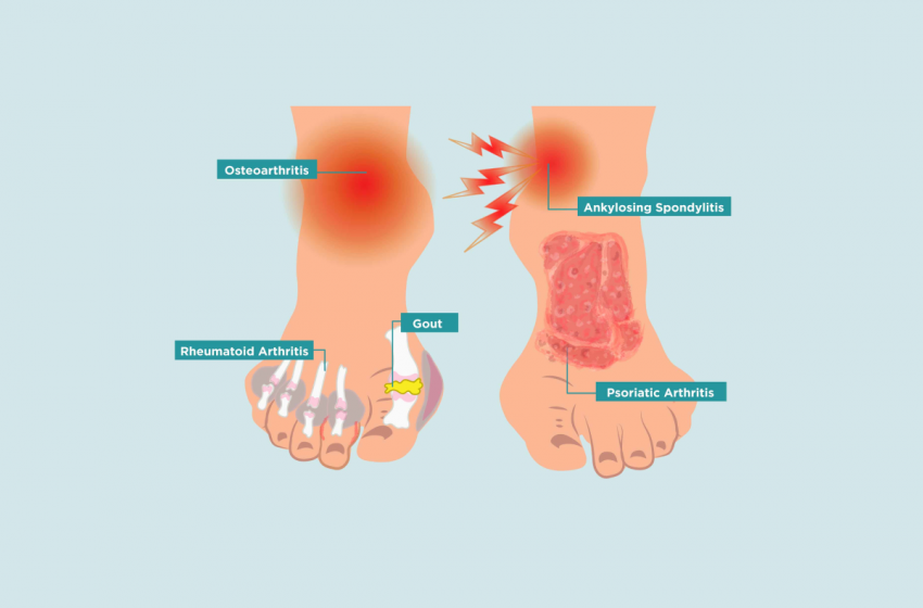 CBD Can Be Used for Several Types of Foot Pain