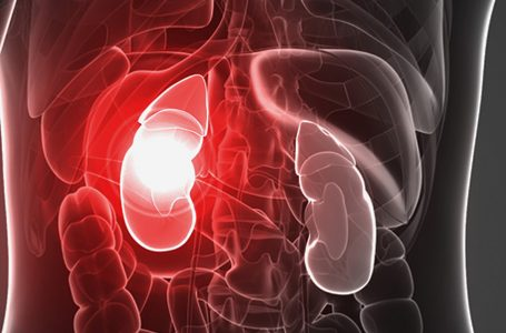 Could CBD Help Manage Symptoms of Kidney Failure?